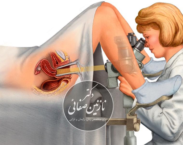 کولپوسکوپی دکتر نازنین صفایی