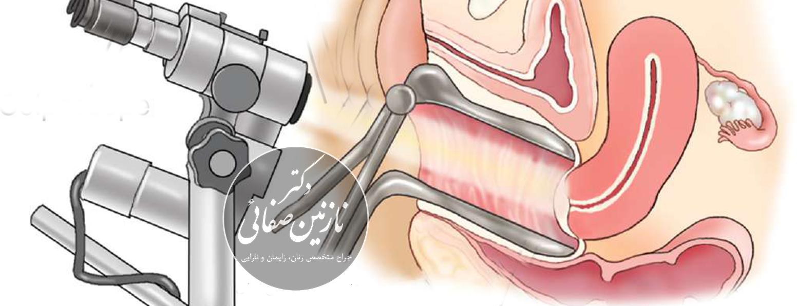 کولپوسکوپی چگونه انجام می شوذ دکتر نازنین صفایی