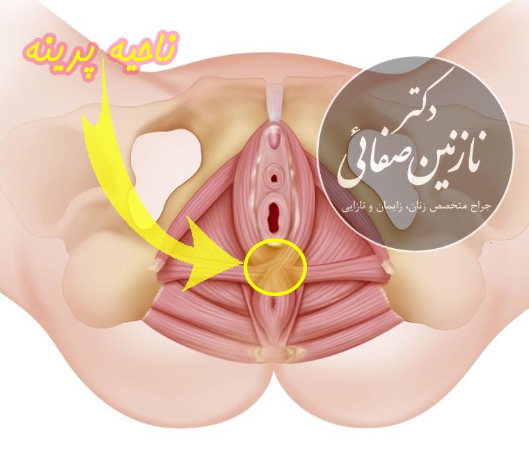 ناحیه پرینه دکتر نازنین صفائی جراح زیبایی زنان