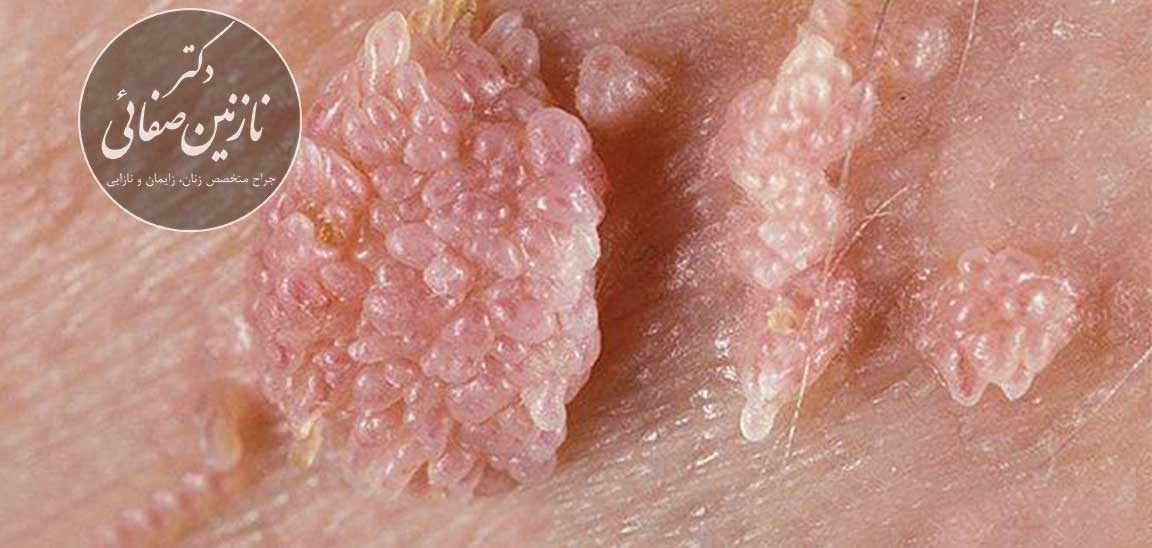 difference-genital-warts-genital-herpes